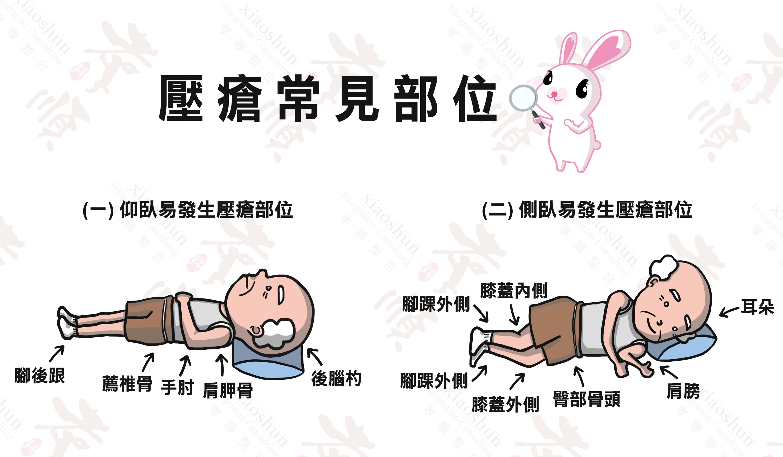 初期 褥瘡